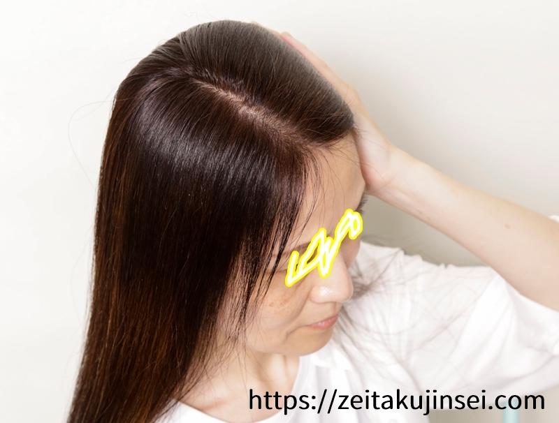 ブラトリ(エメリル ブラックデュアルトリートメント)の使用後の前方の効果と白髪染め具合